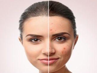 Ayuda para el acne